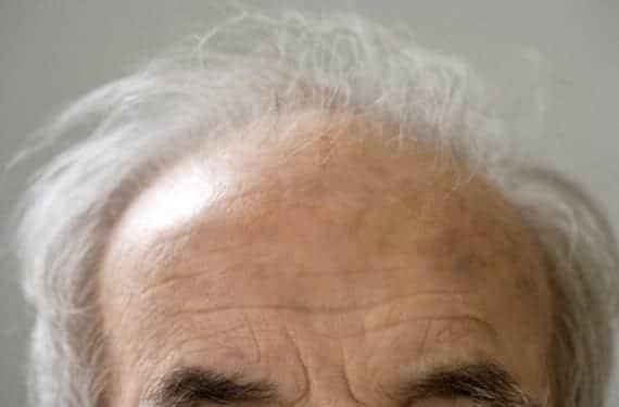 cabeza de persona mayor