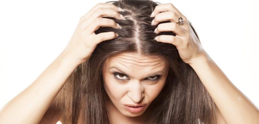 alopecia-femenina