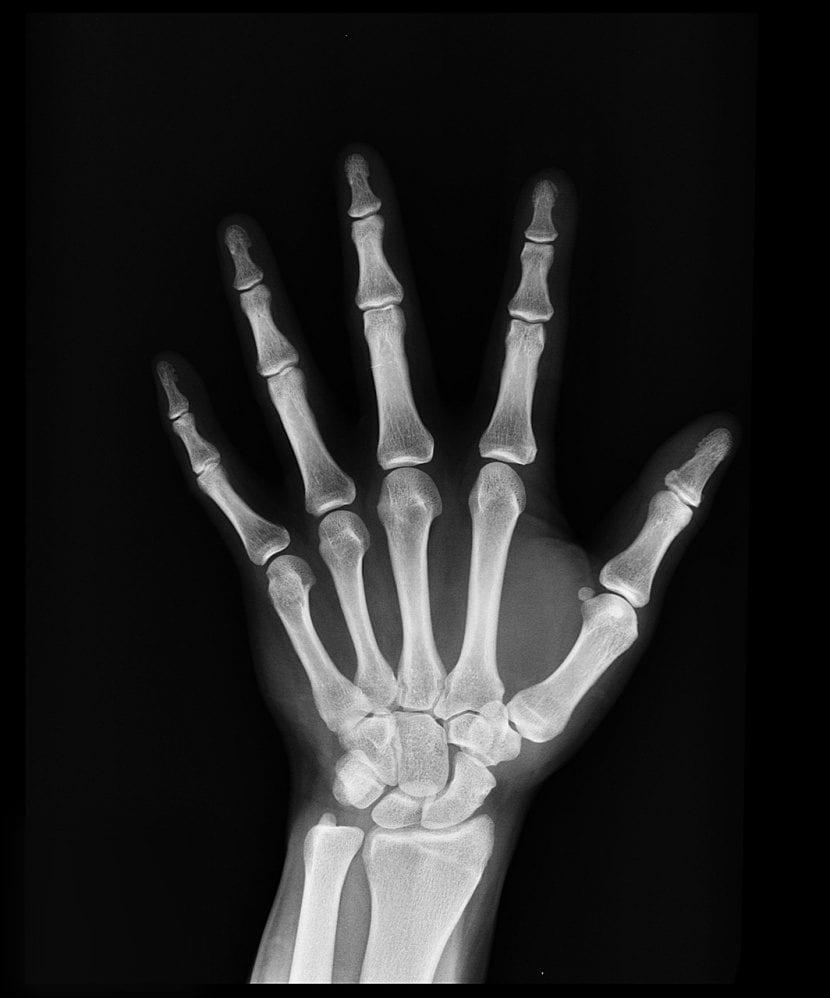 Metales en los huesos